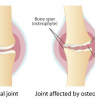 Does Glucosamine Chondroitin Help knee and Joint Pain Due to Osteoarthritis?