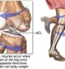 How to Prevent ACL Injuries