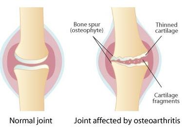 glucosamine chondroitin for osteoarthritis pain