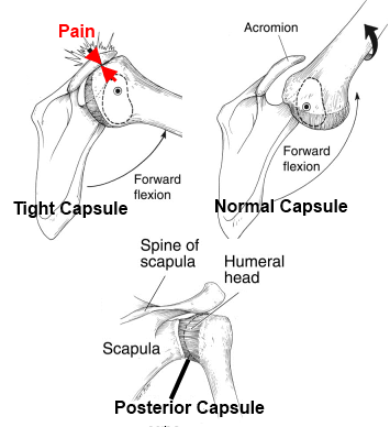 posterior capsule tightness in shoulder pain